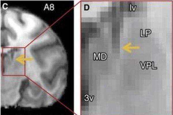 مرکز کنترل هوشیاری در مغز کشف شد